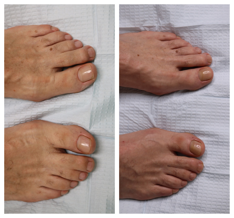 Webbed Feet