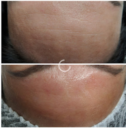 Forehead Micro-Needling Before and After