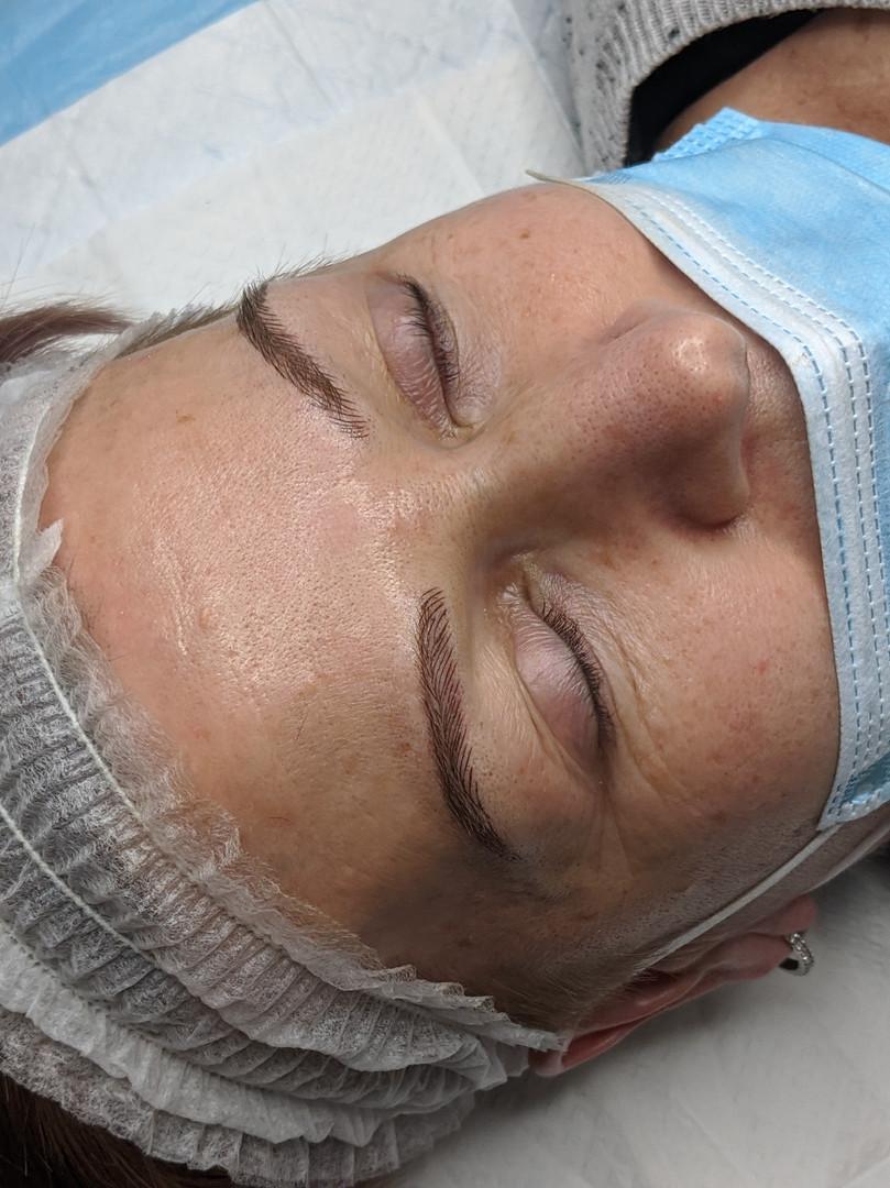 After microblading @beyondlashesandbrows