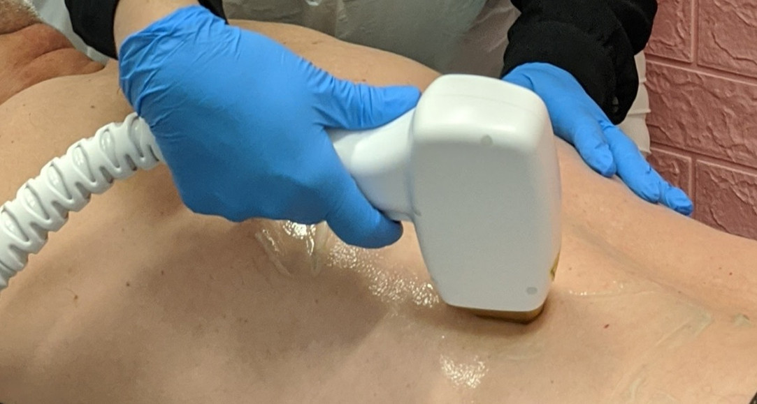 Diode Laser Hair Removal (painless) -San