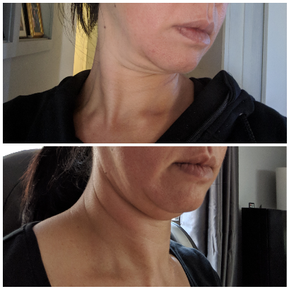 BTL Exilis Neck Lift.png