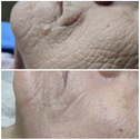 plasma pen treatment for wrinkle removal