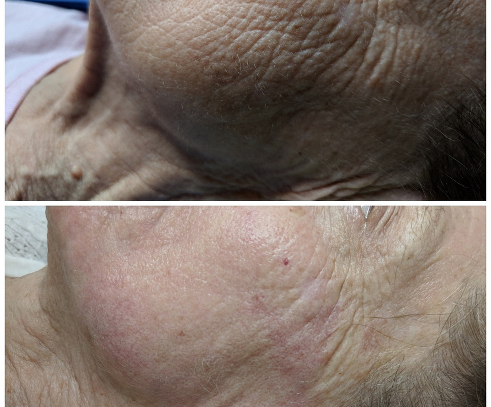Microneedling and Plasma Pen Skin Liftin