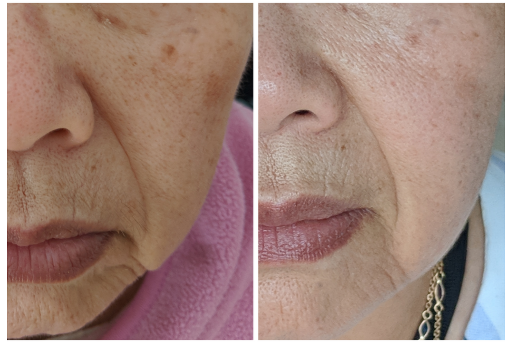 Microneedling for skin tone and pigmenta