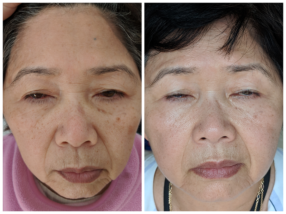 before and after plasma pen skin lifting