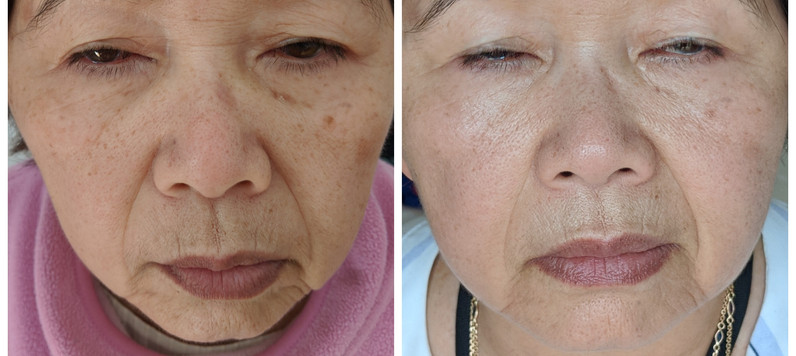 before%20and%20afteplasman pen skin lift