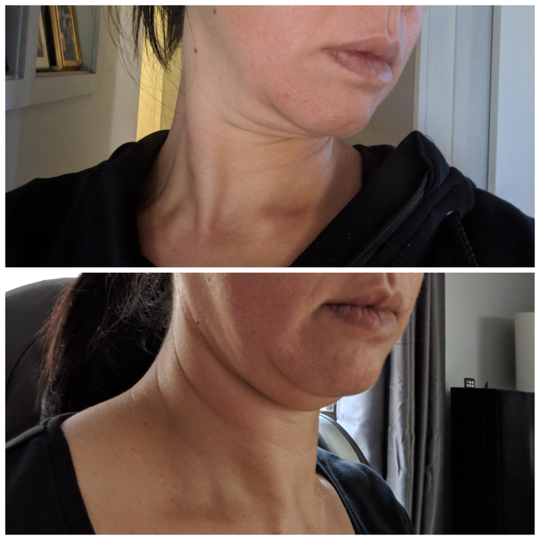 BTL Exilis double chin removal before an
