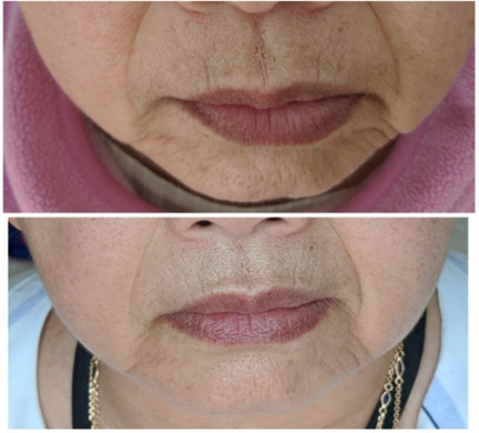 Microneedling for skin tone correction a