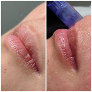 Lip Microneedling Before and After.jpg