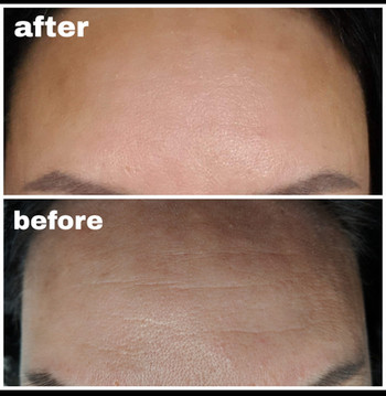 Forehead wrinkle removal with plasma pen
