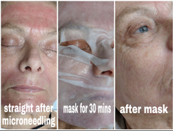 Microneedling treatments -Sandringham-