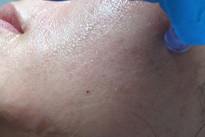 Micro-Needling treatment - sandringham-.