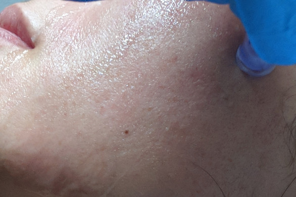 Micro-Needling treatment - sandringham-.