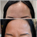 BTL Exilis forehead wrinkle removal befo