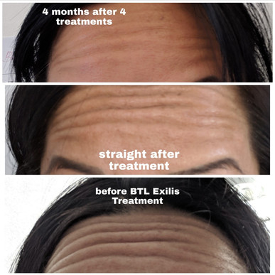 BTL exilis Forehead wrinkle Removal.jpg