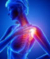 18891380-青で女性の肩の痛みの解剖学のイラスト.jpg