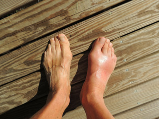 Gout an Old Man's Disease?