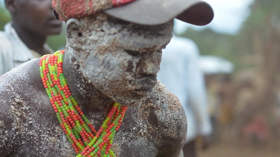 Wat mannenbesnijdenis in Afrika ons leert over racisme in Nederland en Zwarte Piet