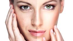 Rejuvenecimiento-Facial1