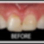 veneers-white-border-before-1-150x150-11