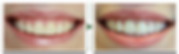 4000x1209x300pdi-smile-gallery-pic-1-102