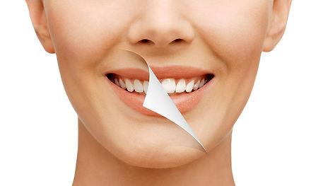 smile-makeover3.jpg