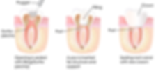 rootcanal-test-21 (1).png