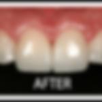 veneers-white-border-after-1-150x150 (1)