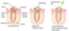 rootcanal-test-11 (1).png