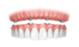 implant-dentures-1-1.jpg