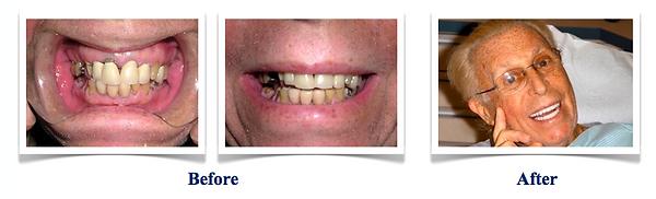 Crown-and-Bridge-Implants-1.png