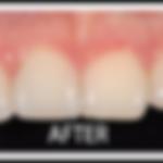 veneers-white-border-after-2-150x150 (1)