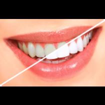 teethwhitening1-300x300-150x150 (1).png