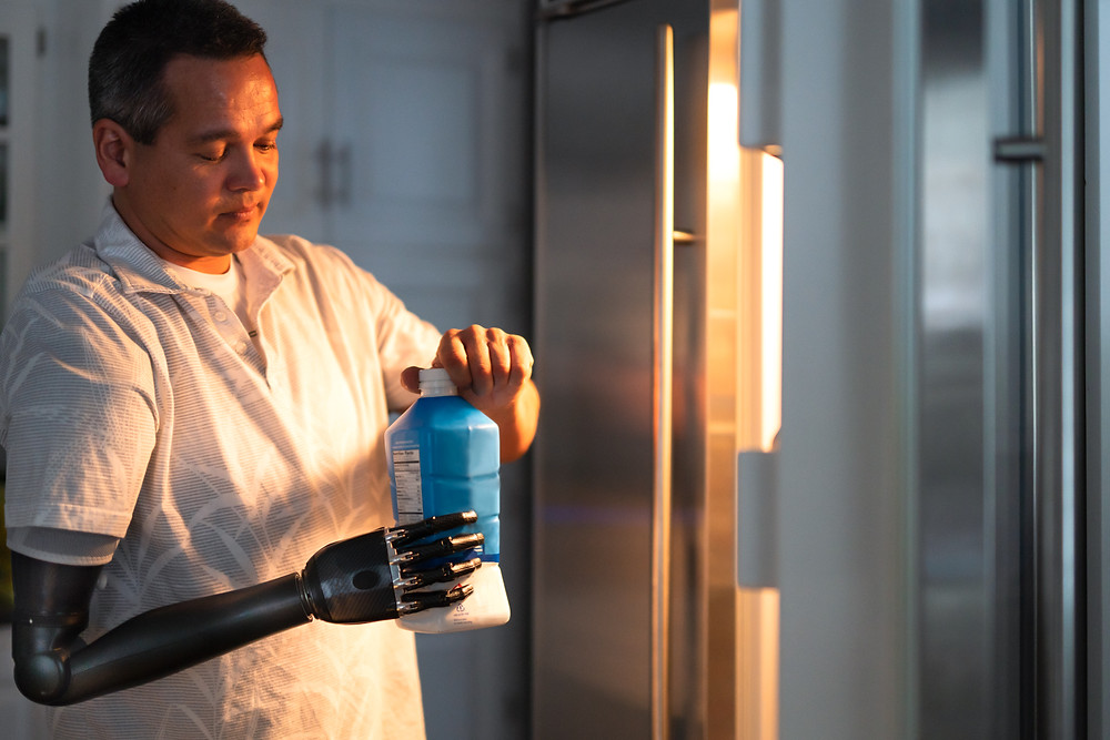 Man with a disability using his prosthetic arm to hold a milk carton and open it near the refrigerator in the kitchen at home
