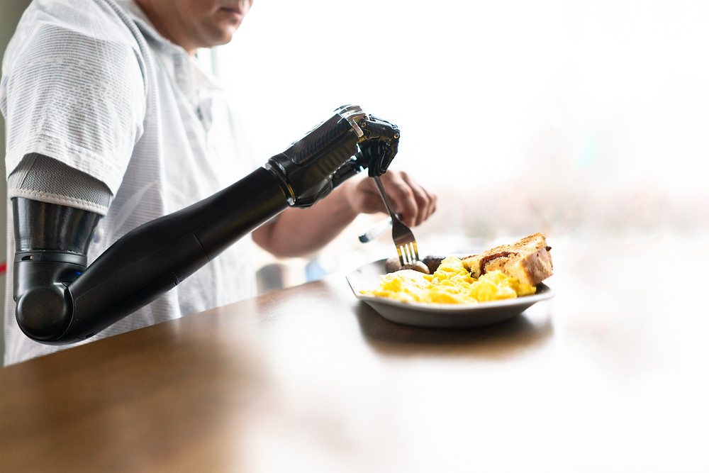 Man with a prosthetic arm using a knife and fork to cut his food at a restaurant