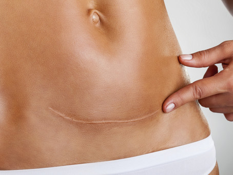 Considerations about scars