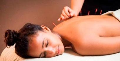 acupuntura.jpg