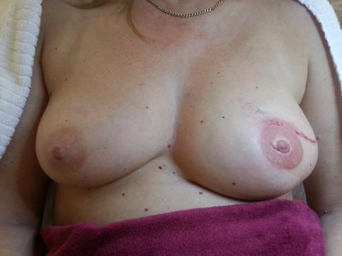Brustpigmentierung Freiwald-Kosmetik