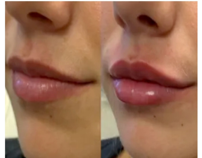 Full lips in minutes