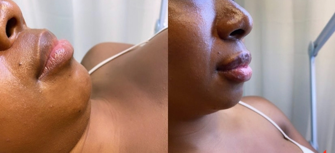 Black women get lip applications
