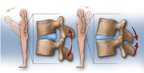 Disc bulge, sipped disc, disc prolapse