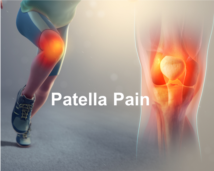 patella pain