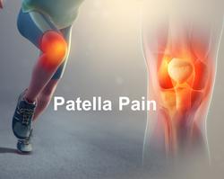 patella pain