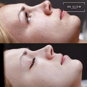 BB Glow Academy| BB Glow Courses | BB Glow Treatment | BB Glow Academy