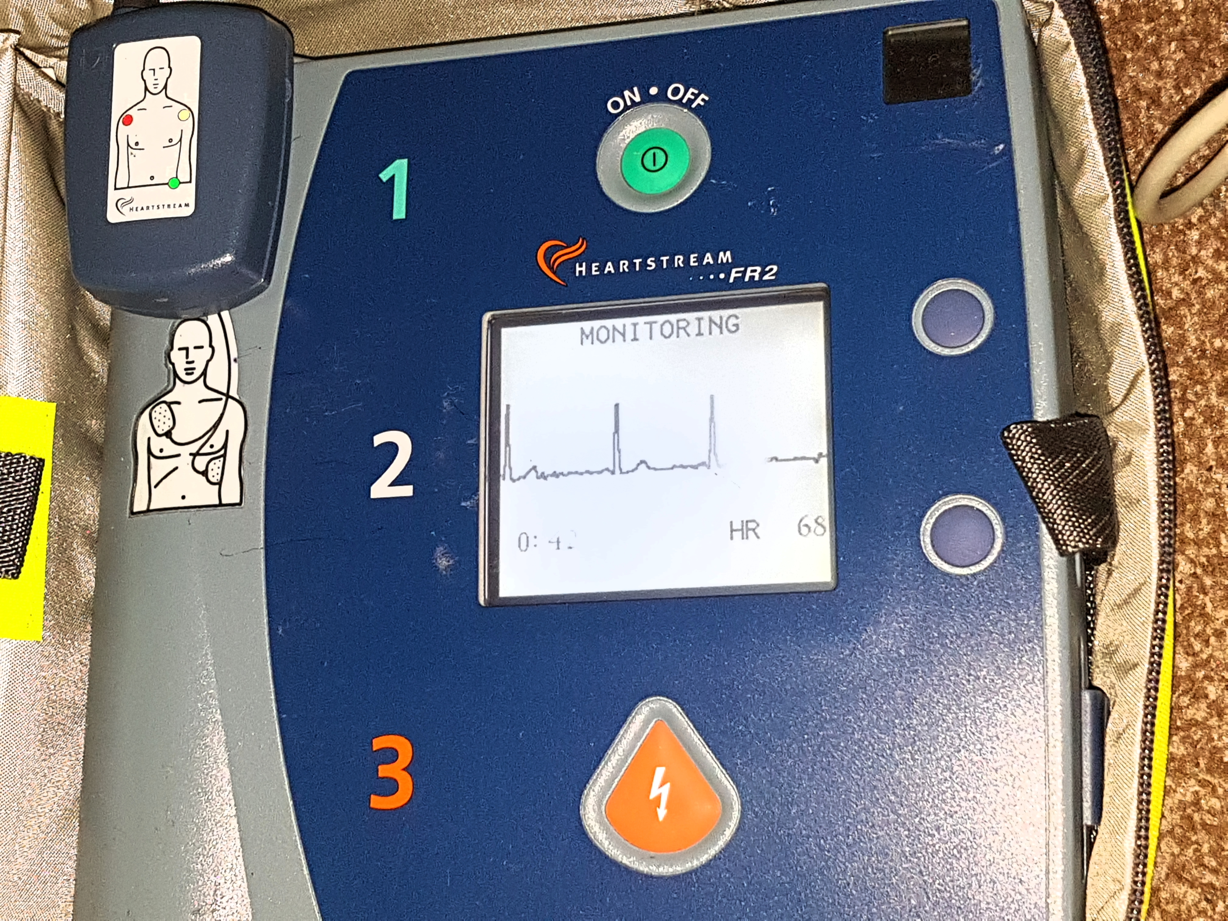 Aed trace