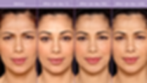 Botox-Before-After-Oxnard-Ventura-Celebr