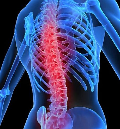 osteoporoz.jpg