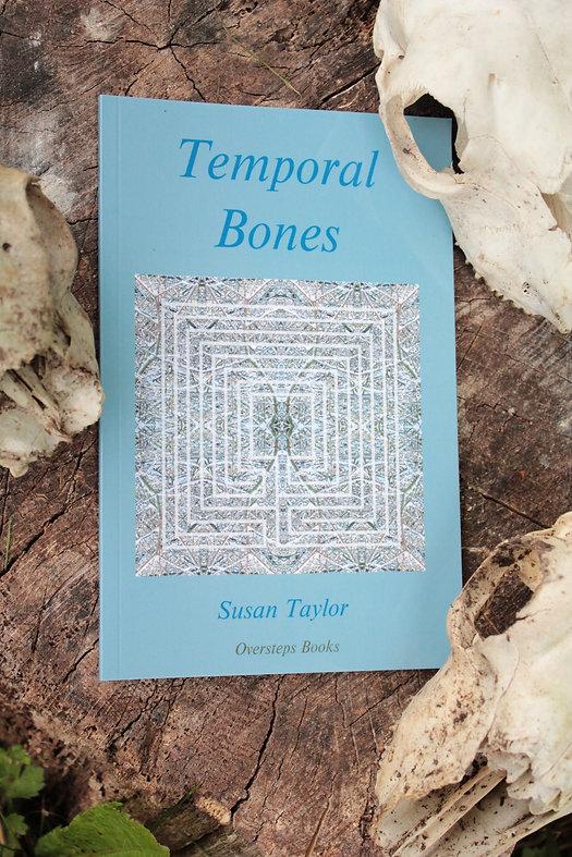 Temporal Bones Whole.JPG