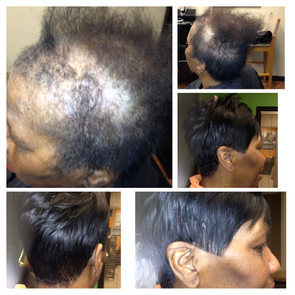 hairloss5.jpg