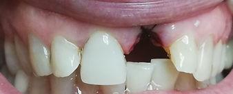dente estratto prima dell'implantologia